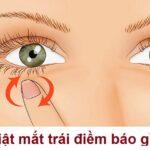 Nháy mắt trái nữ có điềm gì không? Mắt trái giật là điềm báo xui hay may?